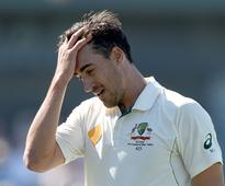 Stitches for Mitchell Starc after training mishap