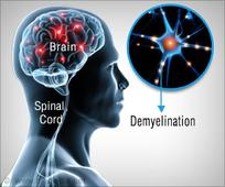 Multiple Sclerosis : Possible Treatment Target Identified