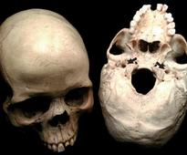 Blood Flow May Have Fueled Hominid Brain Growth