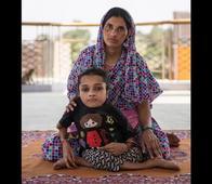 Sabal Parveen Is An 18-Year-Old Teen From Bihar And Has Broken 90% Bones In Her Body Over 1,000 Times