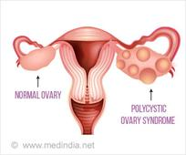 Polycystic Ovary Syndrome Among Women Is Overdiagnosed Due to Its Definition