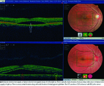Features of central serous chorioretinopathy presenting at a tertiary care hospital in Lahore
