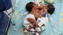 Conjoined Twin Girls Born in India