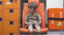 Syrian President Bashar Al-Assad Insists The Viral Boy In The Ambulance Photo Is Fake