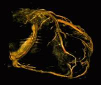 Cardiovascular Hybrid OR
