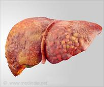 Novel Drug Reverses Liver Inflammation, Injury and Scarring