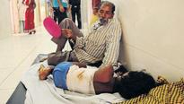 Top Ranchi hospital treats burns patients on the floor