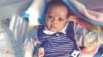 Baby Bartholomew needs N6m for corrective surgery