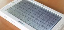 Cameroonian heart-monitoring device wins $38k prize