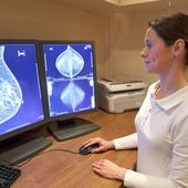 COSA offers fresh data on early breast cancer