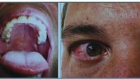 Zika virus rash pattern, spots in vacationer could aid diagnosis, U.S. dermatologists say