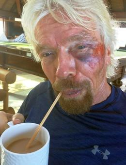 'Thought I was going to die': Richard Branson on horrific bike crash