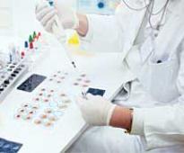 Johnson & Johnson buys Swiss biopharma firm Actelion for $ 30 billion