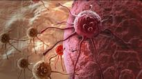 New treatment offers hope for patients of hard-to-treat kind of breast cancer