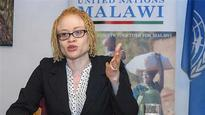 Malawi bans foreign witch doctors over albino murders