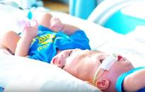 New York surgeons separate 13-month-old boys conjoined at head